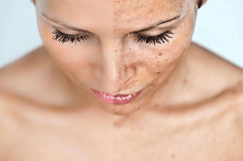 В этом секретном продукте содержится коллаген! Вот что нужно есть, чтобы избежать старения кожи.