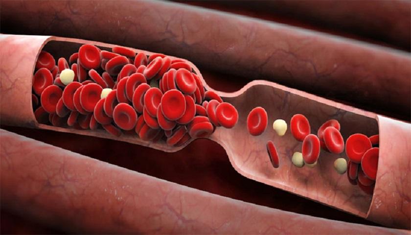 8 продуктов, разжижающих кровь. Узнай, как предотвратить появление сгустков и прожить долгую жизнь