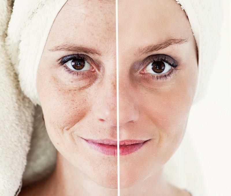 Кофейная маска: смешиваю, наношу на лицо — через 15 минут выгляжу как голливудская красотка!