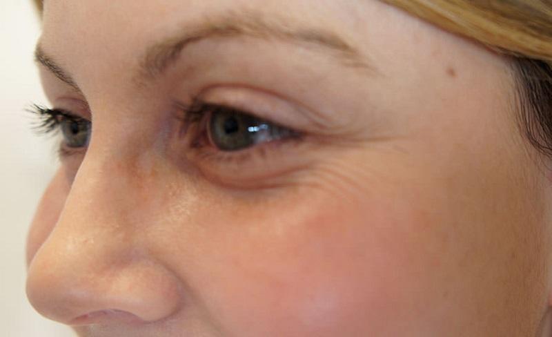Как избавиться от морщин, темных кругов под глазами и сыпи