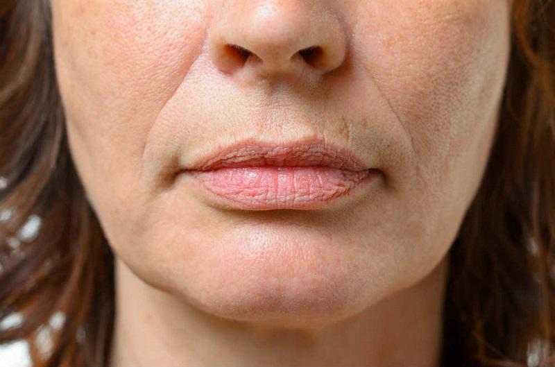 Как убрать глубокие морщины вокруг рта: 5 домашних масок, творящих чудеса с увядающей кожей. Изменения заметят все.